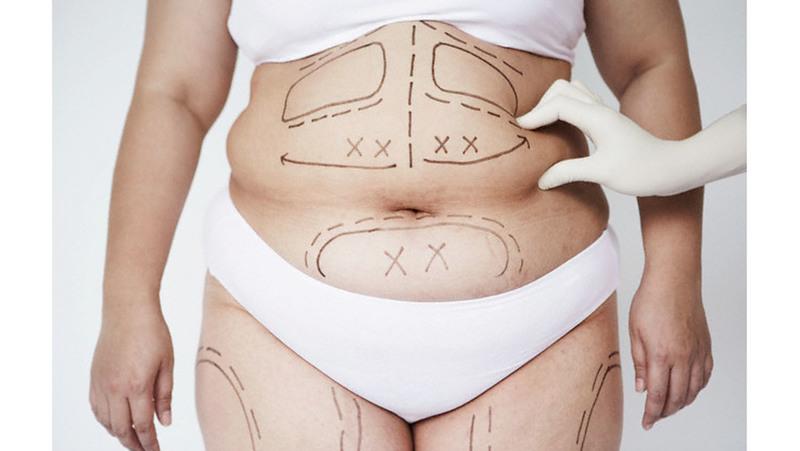 Абдоминопластика. Особенности операции по коррекции живота