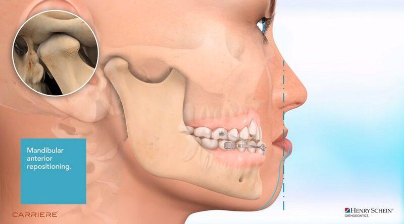 Исправление прикуса. Выдвинутая нижняя челюсть. Видео