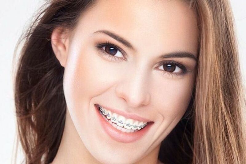 Orthodontics Definition and effectiveness of treatment