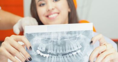 Современная имплантация зубов что нужно знать