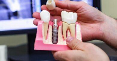 Имплантация зубов что нужно знать