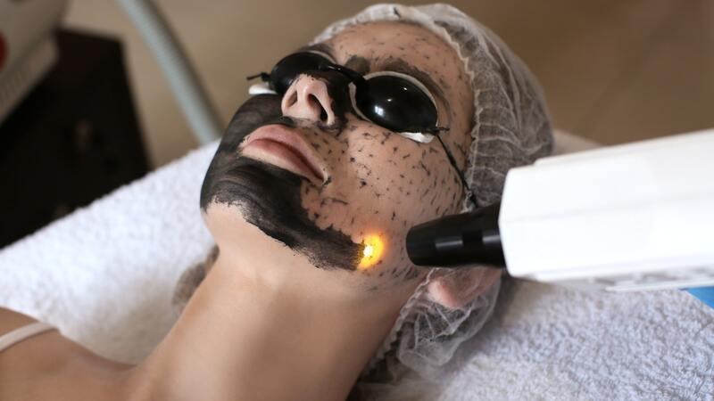 Лазерная чистка лица в косметологии