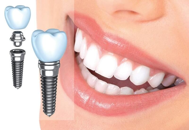 Как выбрать клинику для имплантации зубов