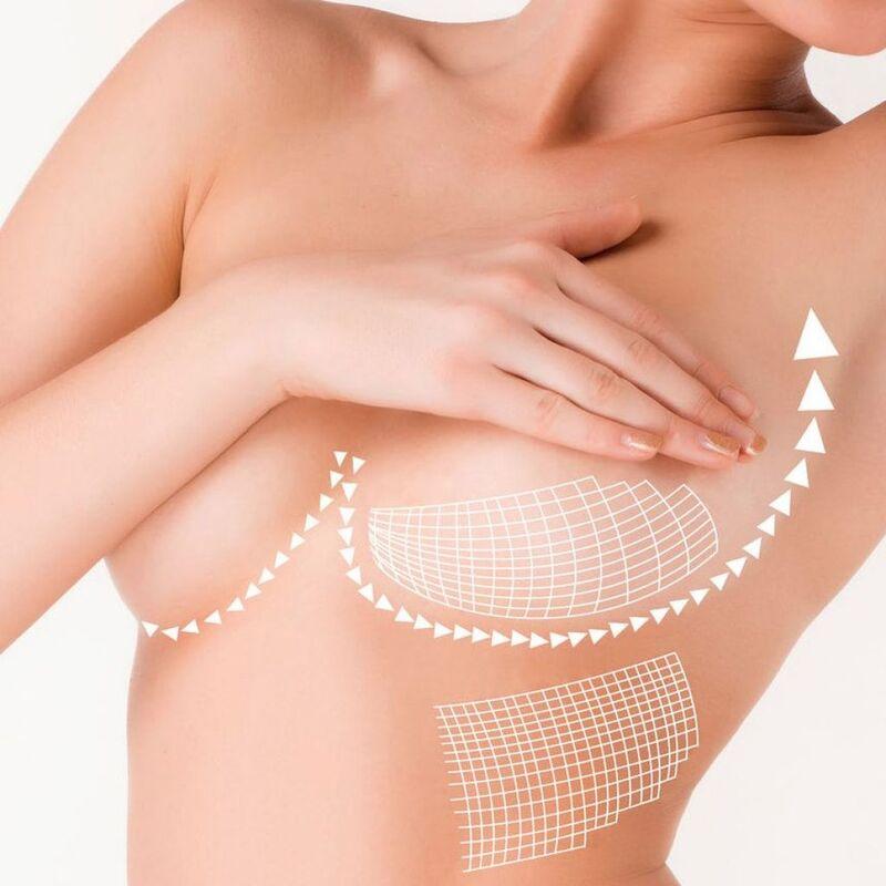 Увеличение груди без имплантов: при помощи жира