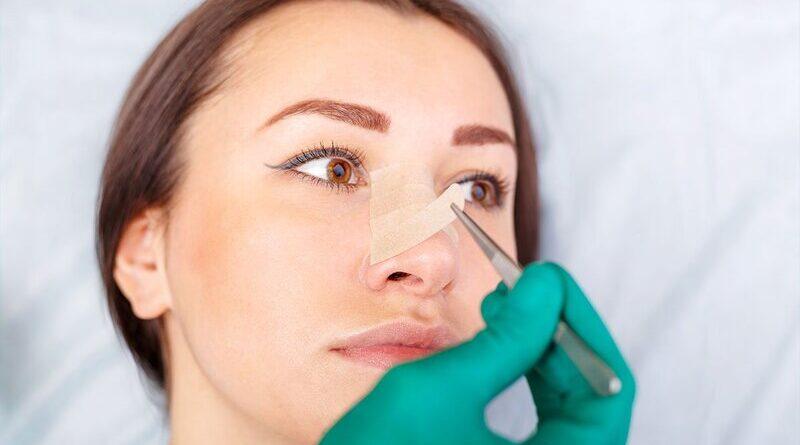 Стоит ли делать ринопластику носа
