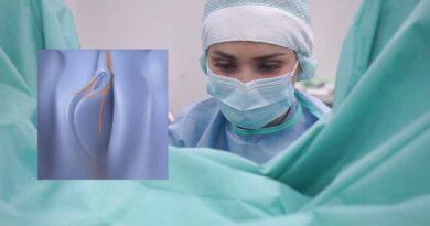 Интимная пластика: показания, виды, советы врачей