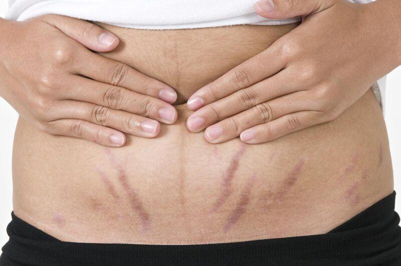 Как убрать растяжки после родов: полезные рекомендации