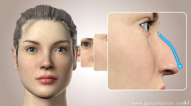 Пластическая хирургия носа. Варианты исправлений. Видео